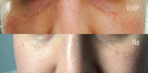 HYDRAFACIAL - www.girlinbetweenied voor en na